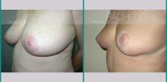 Reducción de senos