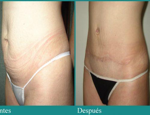 Adelgazar el abdomen – Dr. Omar Pacheco